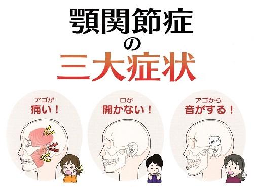 顎関節症について流山市の整体師が解説